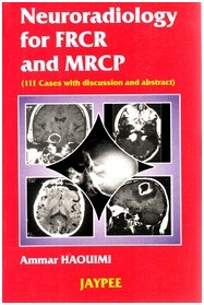 Neuroradiology for FRCR and MRCP 1st Edition