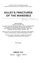 Killeys Fractures Of The Mandible ; Ban...